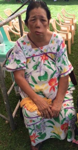 Stroke patient Nanny Velasco