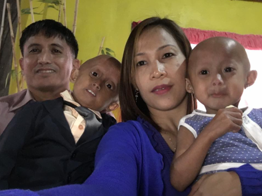 The Agbayani family – from left Gerson, Jeshaiah, Jumely and Nezha -- is visiting New York after seeing specialists at the Progeria Research Foundation in Boston.